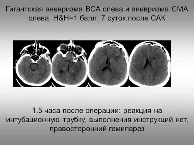 САК и инсульт, интенсивная терапия и нейропротекция (2 МСН) Савин И.А.