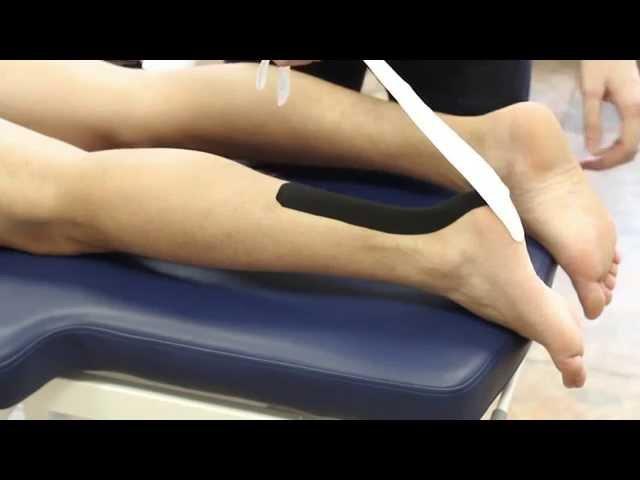 Кинезиотейпирование ахиллова сухожилия и икроножной мышцы