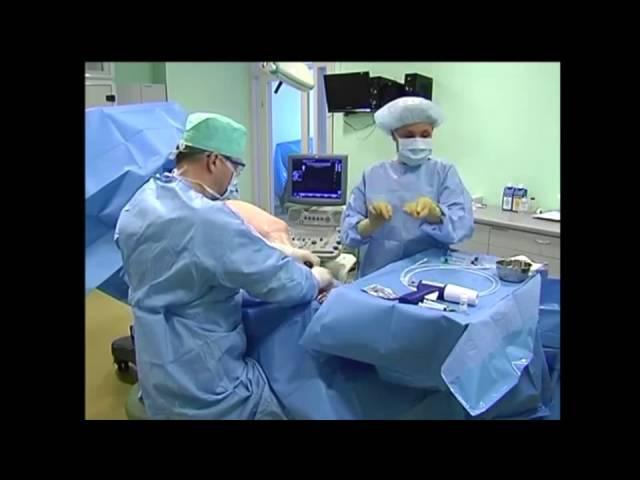 Проведенная врачом БКВ VC4 Интсом Удрисом операция по закрытию вен биоклеем