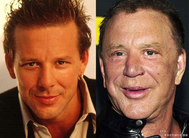Существует мнение, что люди не меняются. К сожалению, глядя на некоторых голливудских звезд, этого не скажешь. Хотя для лицедеев менять маски на экране – нормальное дело, увлечение Голливуда пластической хирургией привело к тому, что многие полюбившиеся п