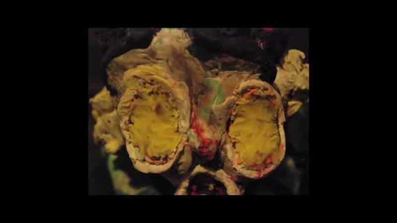 Hobo Clown (2008), by Allison Schulnik [feat. music by Grizzly Bear]