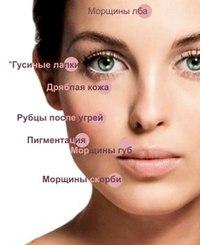 мезококтейли для лица купить