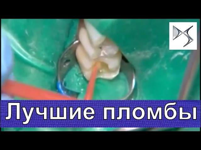 Как за рубежом ставят высококачественные пломбы Терапевтическая и ортопедическая стоматология