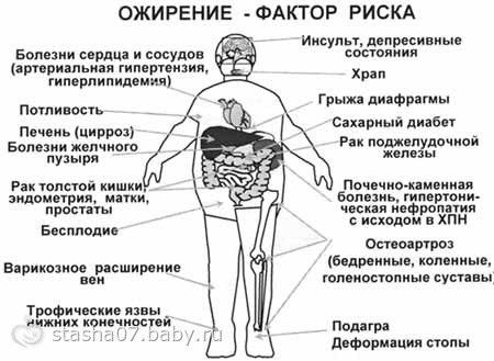 Тренажер Бубновского (аналог)
