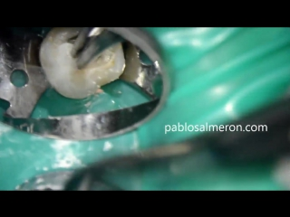 Maxillary first molar. 4 root canals. Continuous wave condensation technique wit