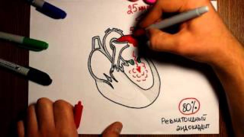 Митральный стеноз. Гемодинамика при пороках сердца. -