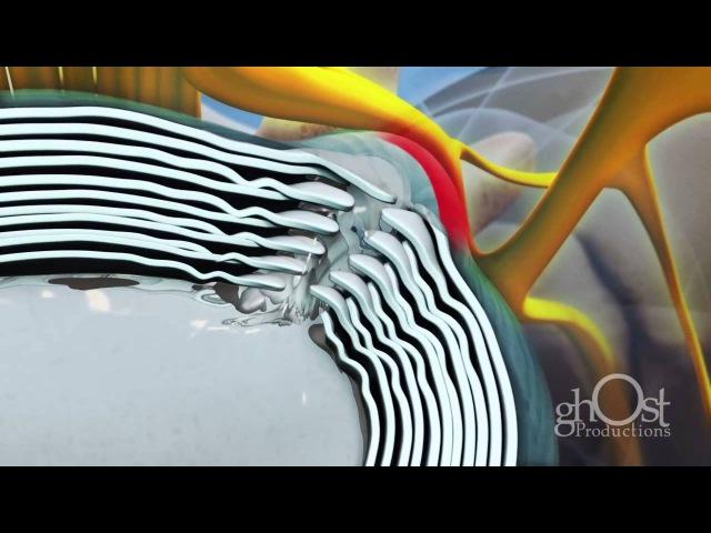 Spine Health - Herniated Disc
