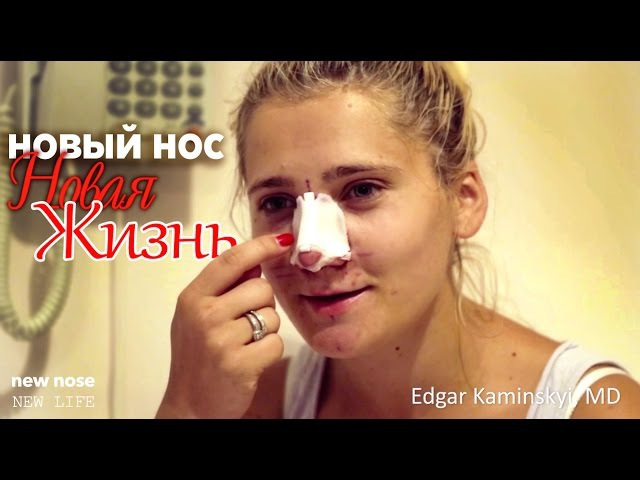 Новый Нос - Новая Жизнь. New Nose - New Life (Каминский Эдгар - Kaminskyi Edgar)