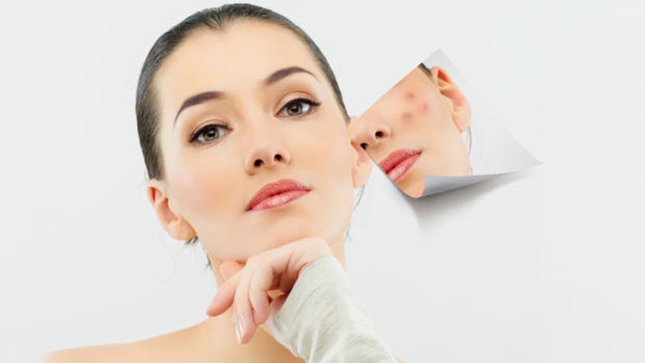Уход за жирной и проблемной кожей «Анти акне терапия»
