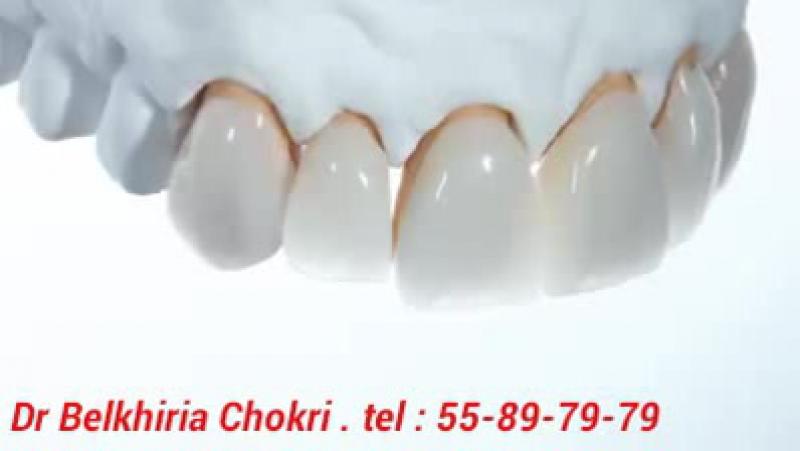 Dr Belkhiria Chokri Dentiste Sousse