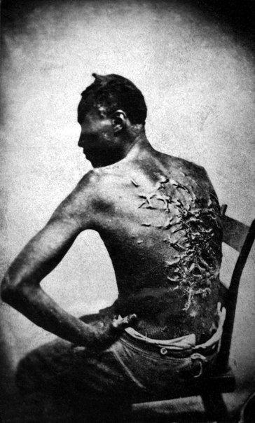 Бывший раб показывает свои шрамы от битья, штат Луизиана США, 1863 г.