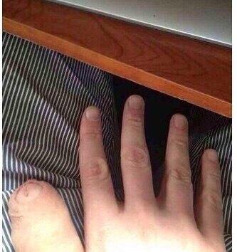Прищемила палец и ноготь почернел - Kattrys