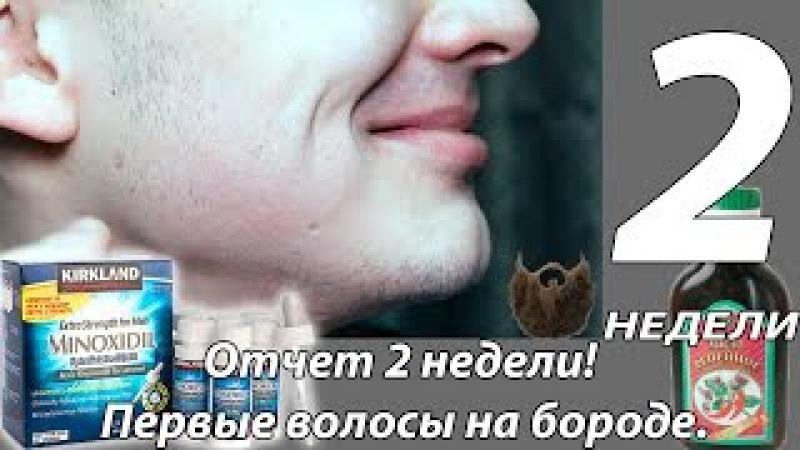Черное море  Опасные животные Черного моря