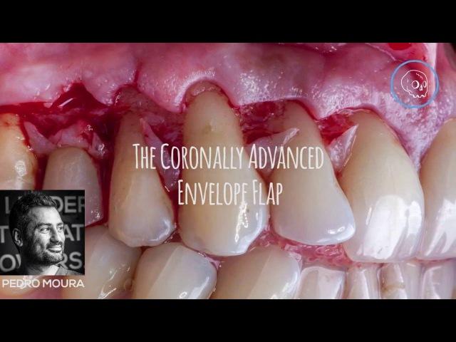 The coronally advanced envelope flap