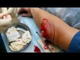 Гнойный бурсит локтевого сустава (вскрытие) - Новый доктор