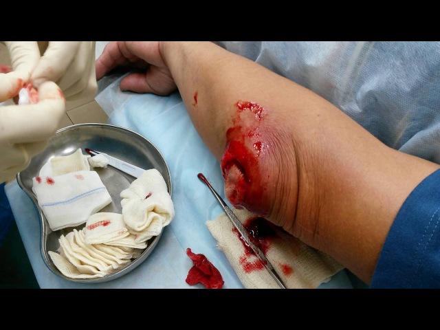 Гнойный бурсит локтевого отростка лечение операция