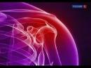 Боли в плече и лопатке Причины симптомы и возможные болезни