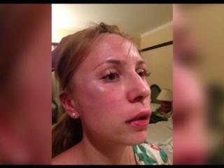 В Египте избили Российскую туристку прямо в пятизвездочном отеле