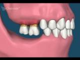 Потеря зубов и зубные движения. Пропедевтика стоматологии.