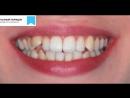 Видео 15. Устранение скученности. Расширение улыбки.