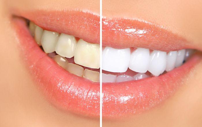 3 результативных рецепта для отбеливания зубов