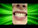 Инновационное Косметическое отбеливание зубов InSmile