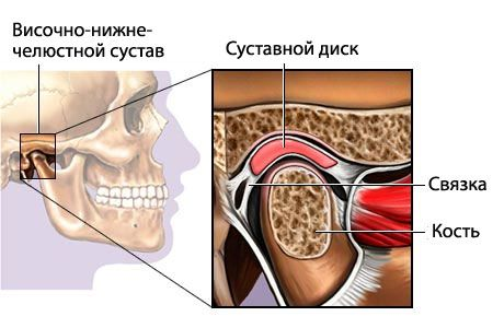 Причины слабых суставов челюсти криотерапия для коленного сустава