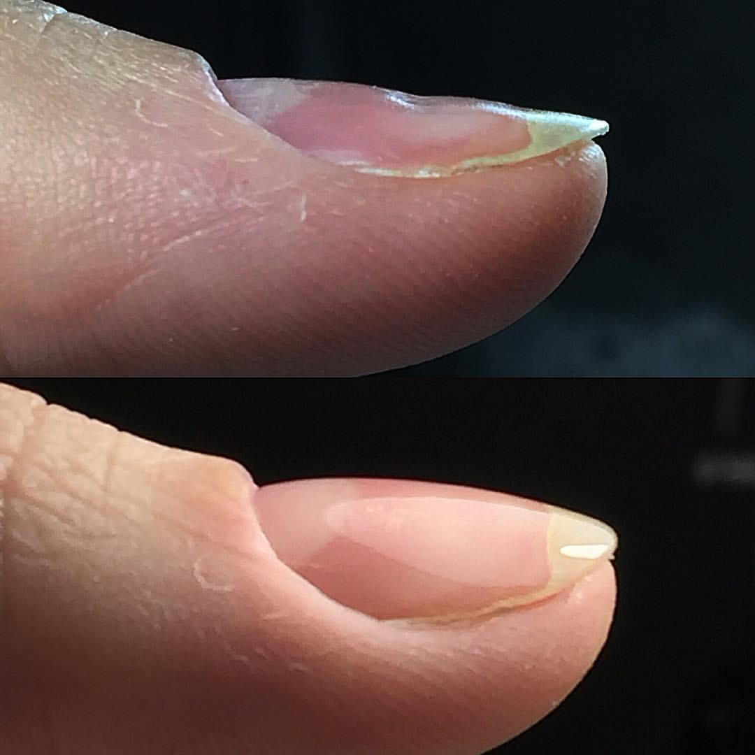 Фото сломанного ногтя на руке
