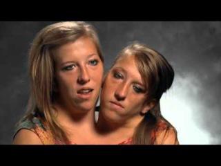 Сиамские близнецы:Эбигайл и Бриттен (колледж и взрослая жизнь) Путешествие в Лон...