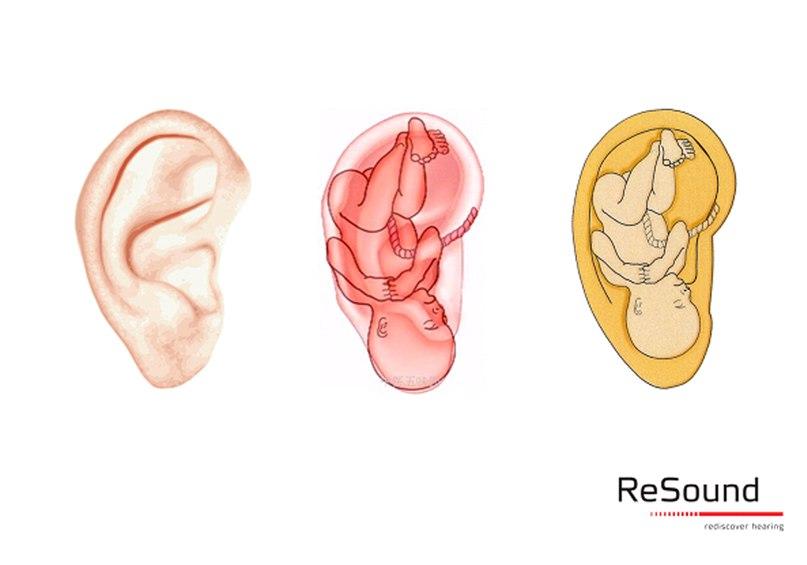 Ухо взрослого человека напоминает по форме человеческий эмбрион