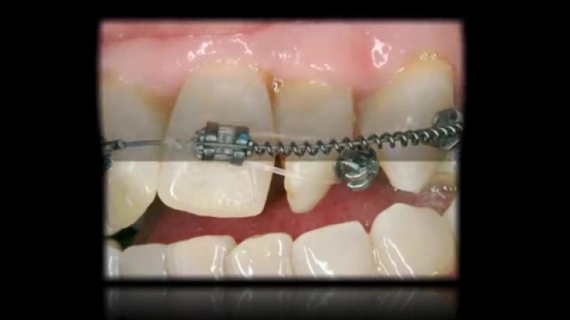 Paladar Estrecho Extremo Sin Cirugía- Expansión. Ортодонтия.