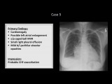 How to Interpret a Chest X-Ray (Lesson 10 - Self Assessment) Part 1