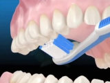 Как правильно чистить зубы зубной щеткой