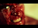 Sedated Belly of the Beast (Official Video)