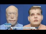 Первая в мире пересадка головы Говорит Украина
