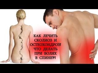 Как лечить сколиоз и остеохондроз! Что делать при болях в спине при сколиозе и остеохондрозе