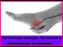 Пяточная Шпора Лечение В Домашних Условиях. Лечение пяточной шпоры желчью
