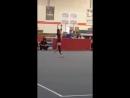 Девочка-гимнастка с протезом ноги