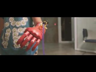 Детские игровые протезы Киби - изменение культуры протезирования в России