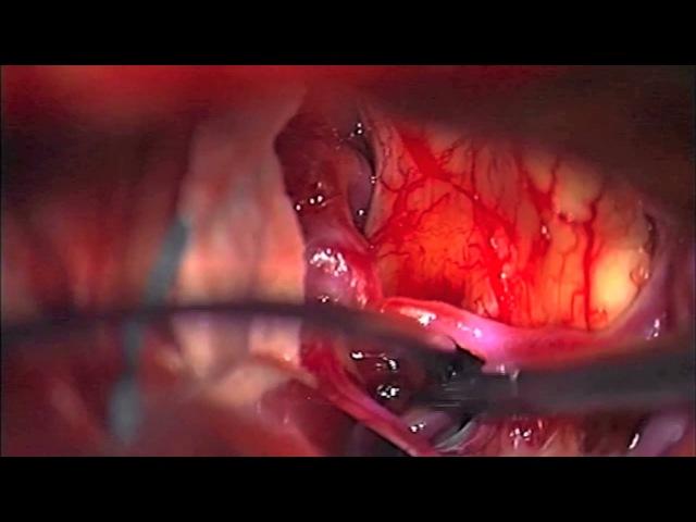 Translamina terminalis route via pterional approach to resect retrochiasmatic craniopharyngioma ...