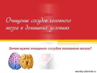 Как в домашних условиях чистить сосуды головного мозга 89
