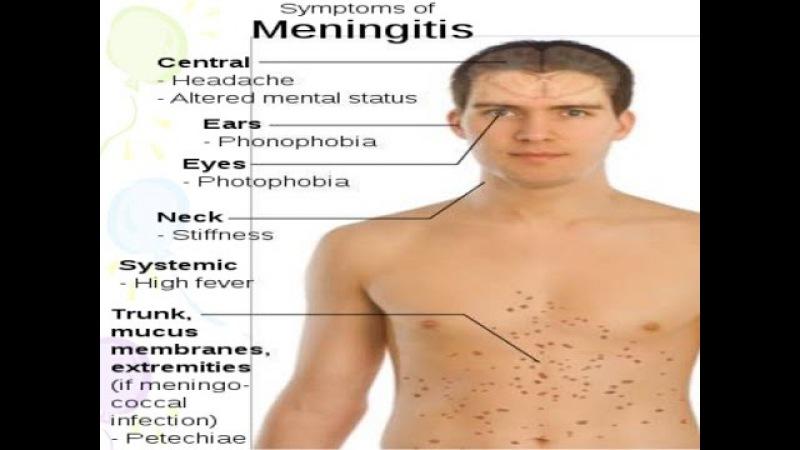 Meningitis syndrom