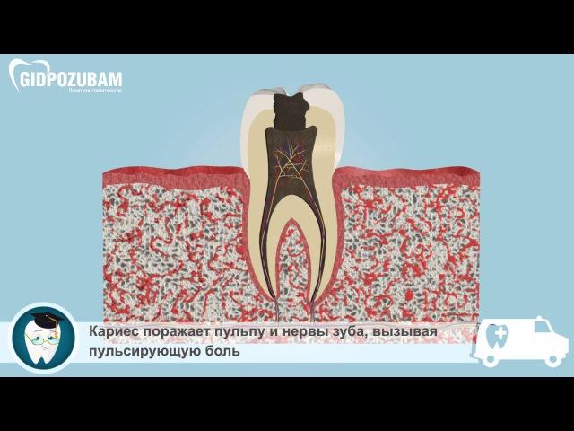 Заболевания зубов: стадии кариеса, периодонтит, киста и гранулема