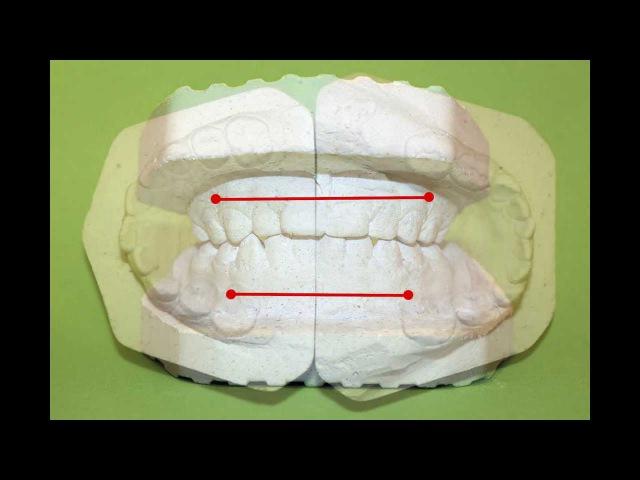Биометрическое изучение (антропометрия) моделей челюстей в период временного (молочного) прикуса