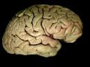 Мозг, ствол и желудочки. Акланд 5 том 2 часть. Перевод