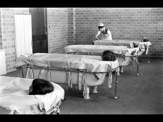 Психиатрическая больница. Жизнь пациентов. Документальный фильм