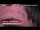 В парке Сосновка избили велосипедиста из-за собаки