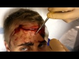 Stitching a forehead cut