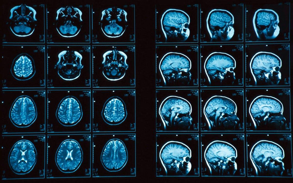 Лечение симптомов рассеянного склероза