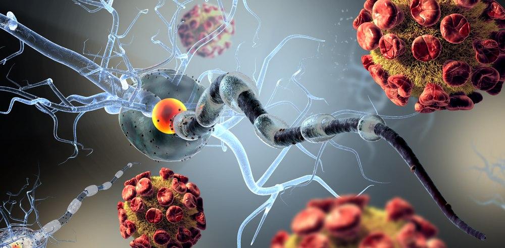 Современные методы лечения рассеянного склероза - схемы и лекарственные средства